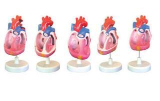 先天性心脏畸形模型 型号:SJ/116016
